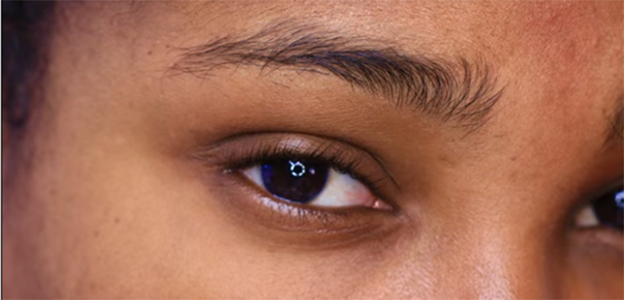Bad shaped eye brows look nasty and spoil look what is the solution to get them shaped without pain