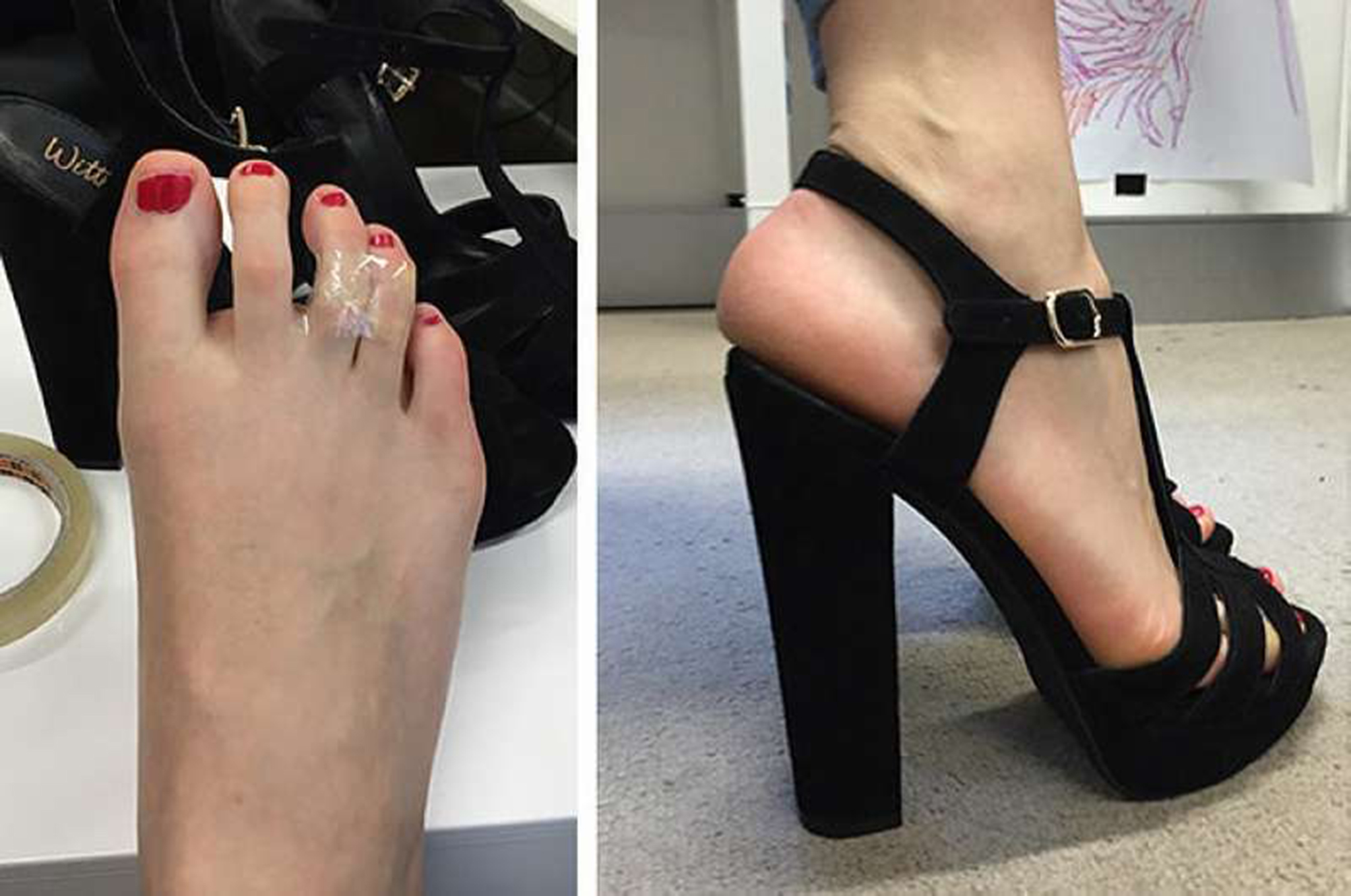 Avoid Heels Shoes Pain